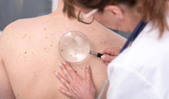 Spotting Skin Cancer Before It Gets Bad