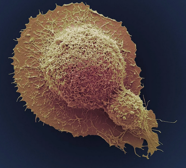 Cancer death rates see sharpest drop in U.S.